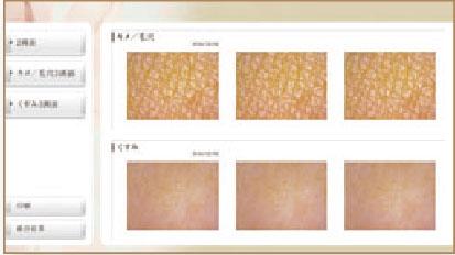 ベラシストお肌の変化、比較